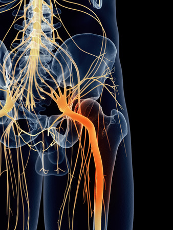 An irritated sciatic nerve